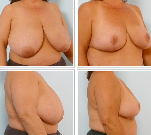 Houston Breast Reduction
